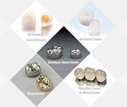 Affordable Dental Crowns Sutton - Dr. Suril Amin